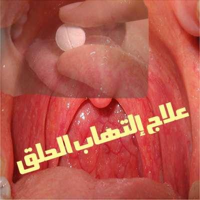 صورة تعرف علي أسباب إلتهاب الحلق وأعراضه وطرق العلاج والوقاية منه
