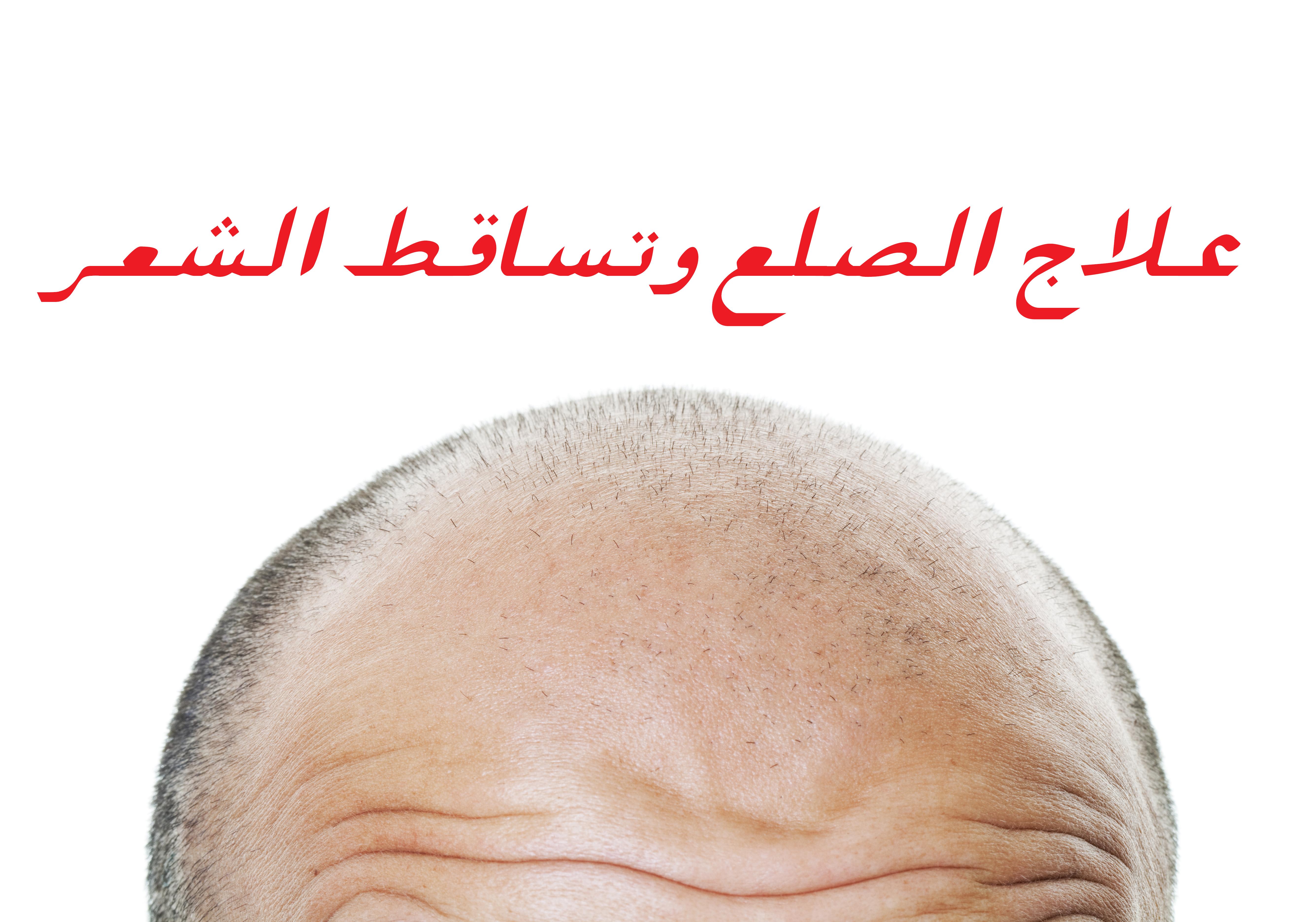 صورة أكثر 20 طريقة فعالة لعلاج تساقط الشعر وزيادة نموه