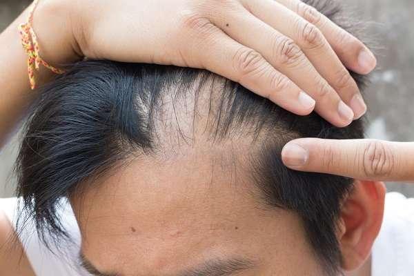 فرد البروتين وتساقط الشعر