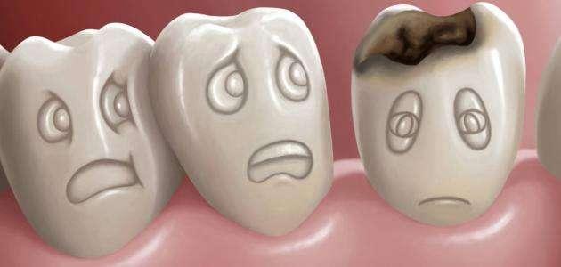 صورة اضرار ومضاعفات تسوس الاسنان تعرف علي الأسباب وكيفية العلاج