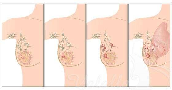 صورة اعراض سرطان الثدي
