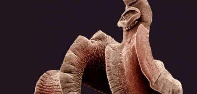 صورة اين تعيش الديدان الطفيلية الشريطية , علاج الديدان الطفيلية الشريطية