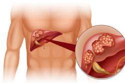 علاج ارتفاع إنزيمات الكبد