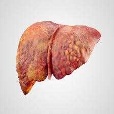 انزيمات الكبد