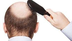 صورة علاج تساقط الشعر عند الرجال