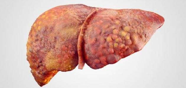 ارتفاع انزيمات الكبد